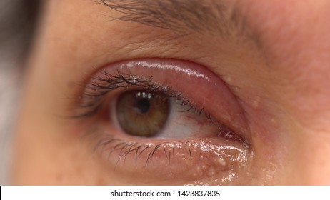 A stye, a hordeolum, a bacterial infection of an oil gland in the eyelid. A red tender bump at the edge of the eyelid. An external stye on the upper eyelid