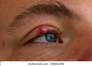 Stye or hordeolum and blepharitis eyelid of a men. It is a bacterial infection of an oil gland.