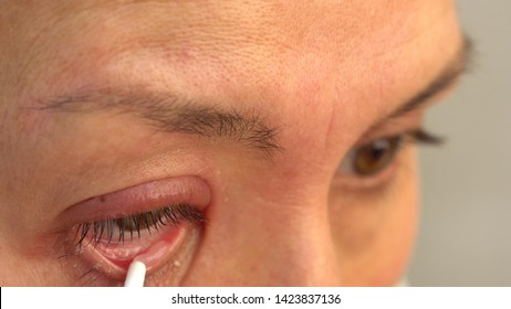 A stye, a hordeolum. Treatment. Use of antibiotic eye ointment