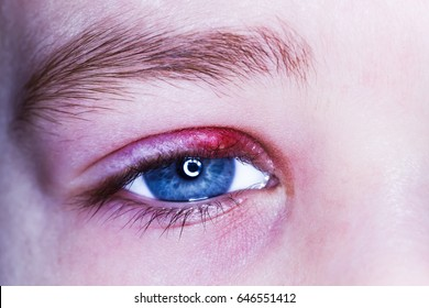 stye kid eye red skin barley bacteria virus