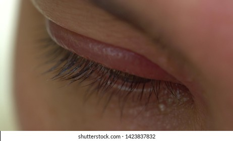 A stye, also known as a hordeolum. Stye of the upper eyelid. Localized swelling of the eyelid, redness. Red tender bump at the edge of the eyelid