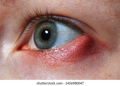 stye on the girl's eye, inflammation of the hair bulb on the eyelids, hordeolum, bacterial infection of an oil grand in the eyelid