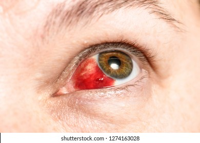 Subconjunctival hemorrhage - hyposphagma. Closeup of woman's face showing red bloodshot eye with browm iris, looked up and right