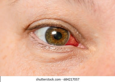 Subconjunctival hemorrhage - hyposphagma. Closeup of woman's red bloodshot eye looking right