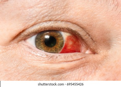 Subconjunctival hemorrhage - hyposphagma. Closeup of woman's red bloodshot eye looking right side frame