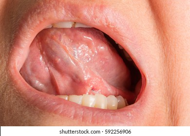 Sub-lingual wound after dentist therapy