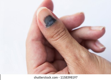 Subungual Hematoma on thumb nail on white background.