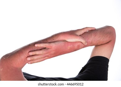 sun burn with swelling and blisters on the skin Caucasian men with psoriasis on light background