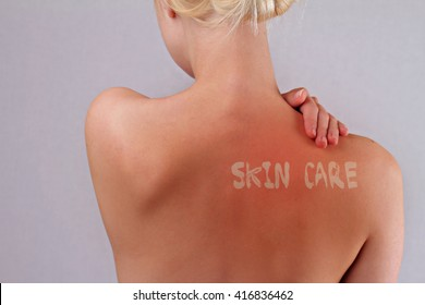 how to stop itchy skin after sunburn