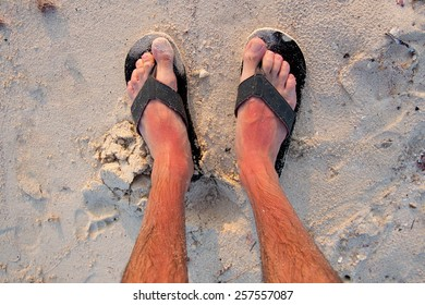 Sunburn on the feet with flip flops, view from above