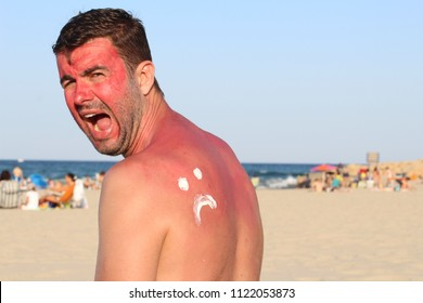 Sunburned man with lots of pain