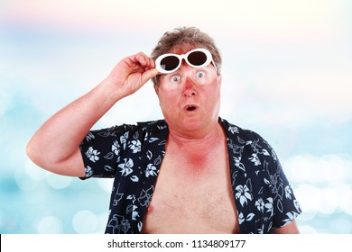 Sunburned man with sunglasses lines