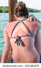 Sunburned summer skin Some skin types are very sensitive to sunburn and need proper protection
