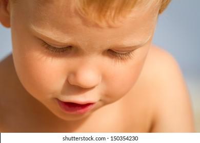 Sunburned three year old boy on the beach