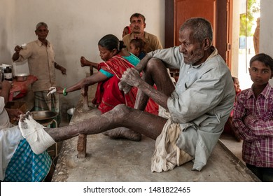 Sundarpur, India - 2013: Unidentified Indian leprosy patients in a local leprosy hospital in Sundarpur, Bihar state, India