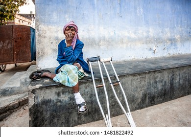 Sundarpur, India - 2013: Unidentified Indian leprosy patient in a rural leprosy colony in Sundarpur, Bihar state, India