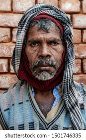 Sundarpur, India - 2013: Unidentified Indian leprosy patient in a rural leprosy colony in Ramgaduwa, Bihar state, India