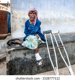 Sundarpur, India - 2013: Unidentified Indian leprosy patient in a local leprosy hospital in Sundarpur, Bihar state, India