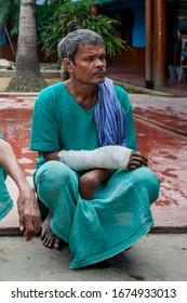 Sundarpur, India - 2013: Unidentified Indian leprosy patient in a local leprosy hospital in Sundarpur, Bihar state, India
