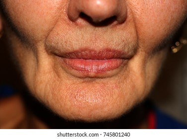 Sunken cheeks. Nasolabial folds on face. Wrinkles