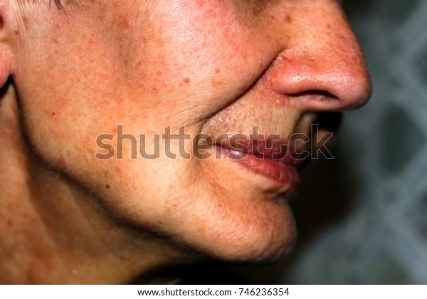 Sunken Cheeks Nasolabial Folds On Face Stock Photo (Edit Now) 746236354