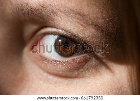 Look - Eyes red natural human albino video