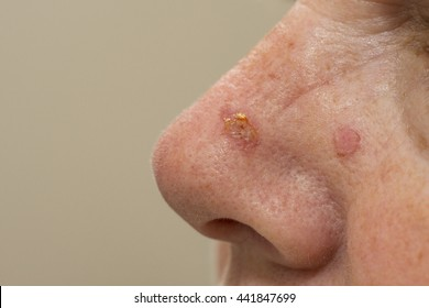 Sunspots on a nose that have been treated with cryosurgery