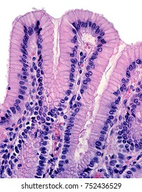 The surface epithelium of the stomach invaginates to form the gastric pits. The pits are lined by a simple columnar epithelium formed by mucous cells.