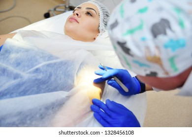 the surgeon beautician removes the patient's woman birthmark or birthmark on the hand with a radio wave knife. Electrosurgical high-frequency apparatus. Prevention of melanoma.