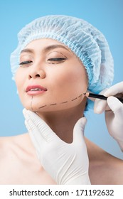 Surgeon drawing correcting lines on female face