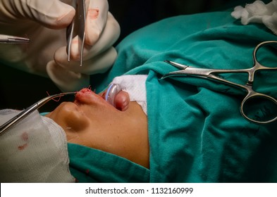 Surgeon in hospital surgery for treatment about Cleft lip cleft palate in operating room at the hospital.
