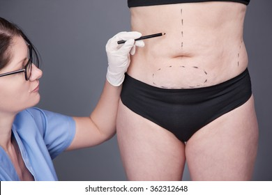 Surgeon, Liposuction, Body. Surgical weight loss, the doctor draws a pencil on the body with a pencil for the operation. Surgery of the Abdominal cavity, Liposuction. Overweight, obesity, Fat Woman