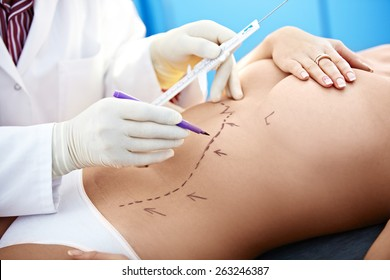 Surgeon making marks on belly