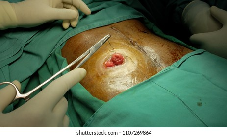 Surgeon performing closure of Ileostomy or Stoma. Step by step procedure.