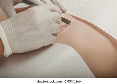 Surgeon preparing to make an incision with a scalpel along a dotted line on the patients skin , close up of his gloved hands