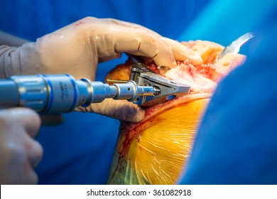 Surgeon working on the tibia in an arthritic knee, as part of a total knee arthroplasty