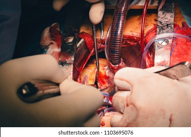 Surgery instruments in surgery operation room, surgeon doing myectomy procedure for hypertrophic obstructive cardiomyopathy
