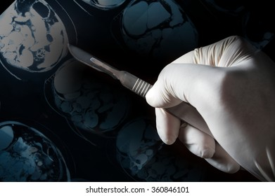 Surgery knife in doctor hand,MRI film on screen.