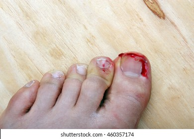 The World's most recently posted photos of stubbed ...