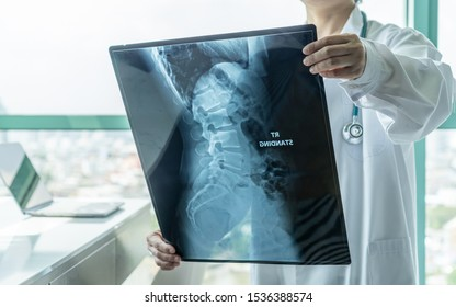 Surgical doctor looking at radiological spinal x-ray film for medical diagnosis on patient's health on spine disease, bone cancer illness, spinal muscular atrophy, medical healthcare concept
