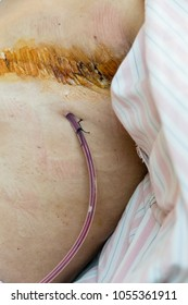 Surgical drain and suture on woman after breast cancer surgery