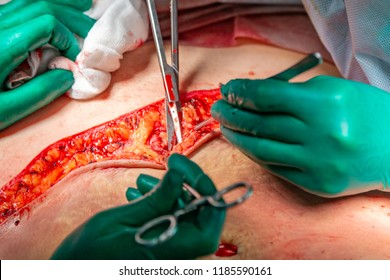 Surgical operation abdominoplasty. Close-up of the patient on the operating table, surgical removal of fat tissue from the abdomen.