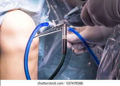 Surgical operation for knee arthroscopy micro surgery in hospital operating theater emergency room of traumatology and orthopedics.