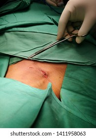 Surgical Operation on Right Supraclavicular Lipoma under General Anaesthesia and aseptic precaution.