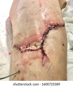 Surgical site infection in case laceration wound at right hip with severe contamination from soil.