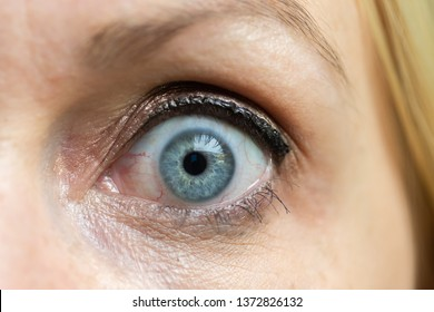 A surprised big blue eye of a young blonde female.
