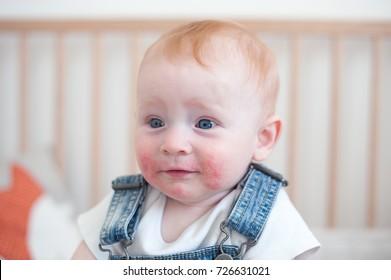 Surprised child with atopic dermatitis