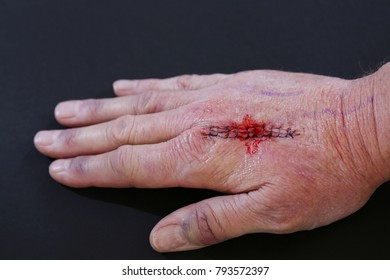 Suture wound on hand from dermatology procedure
