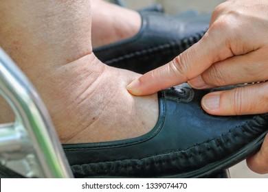 Swollen Finger Images, Stock Photos & Vectors | Shutterstock