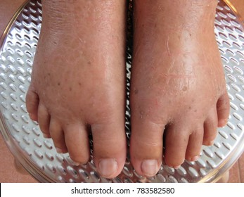 Swelling feet of the old lady on the stainless chair, Water retention or edema occurs when excess fluids build up inside your body